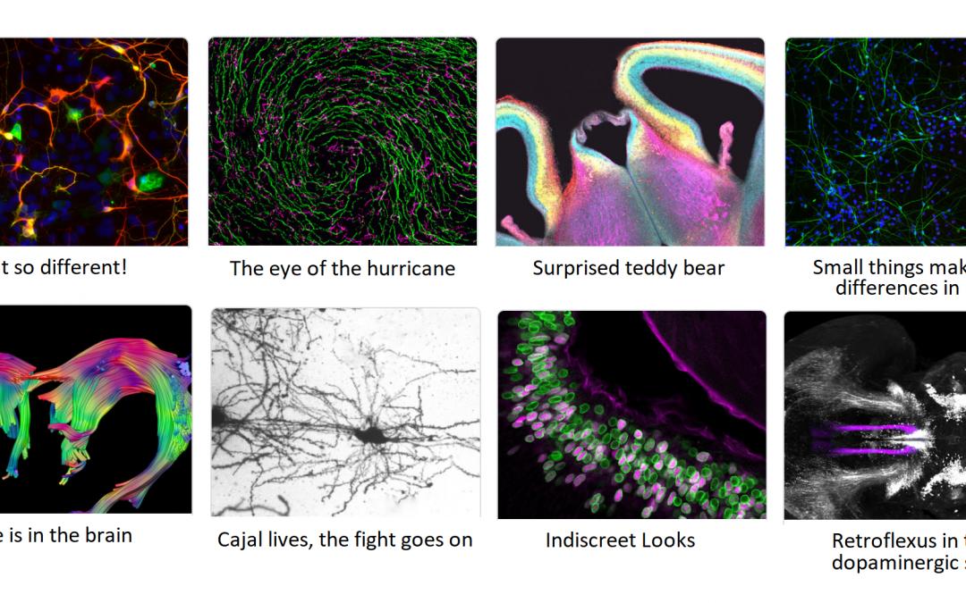 El Instituto de Neurociencias da a conocer los nombres de los ganadores de su I Concurso de Fotografía Científica